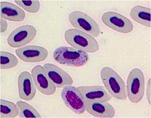 Avian_malaria2